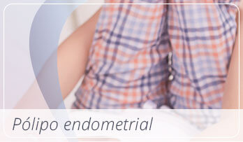 Chamada Pólipo endometrial